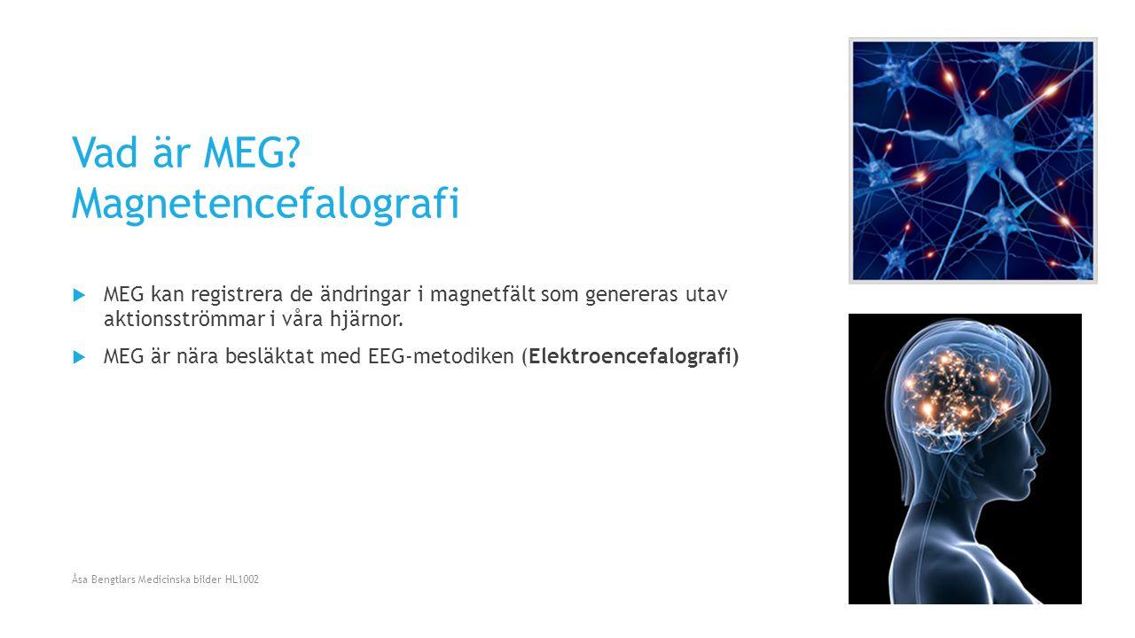 Vad är MEG Magnetencefalografi