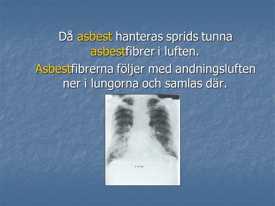 Då asbest hanteras sprids tunna asbestfibrer i luften.