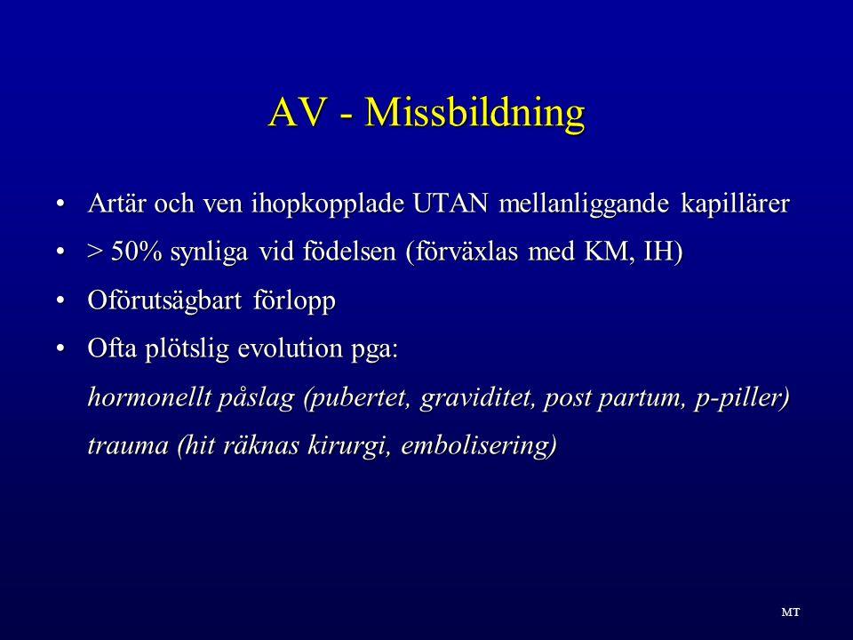 AV - Missbildning Artär och ven ihopkopplade UTAN mellanliggande kapillärer. > 50% synliga vid födelsen (förväxlas med KM, IH)