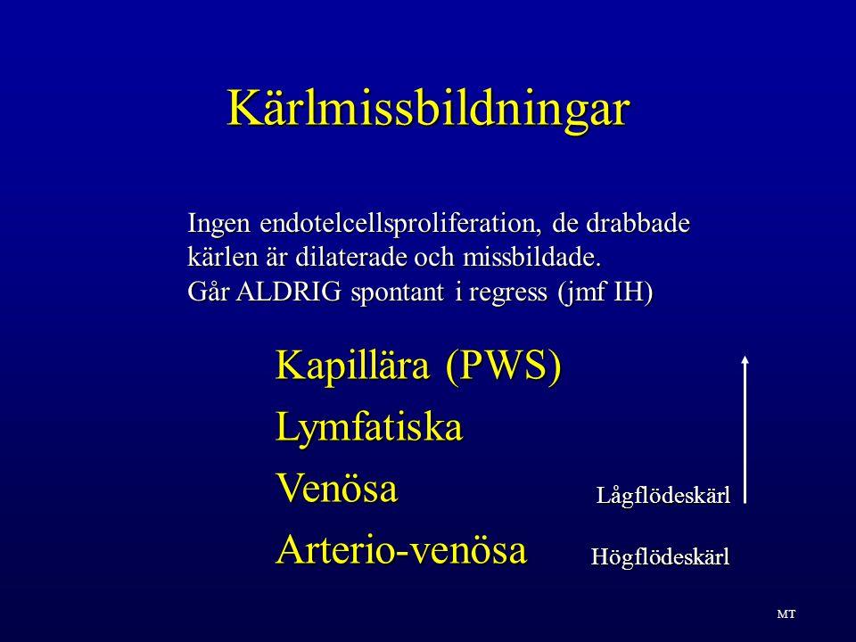Kärlmissbildningar Kapillära (PWS) Lymfatiska Venösa Arterio-venösa