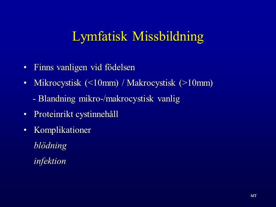Lymfatisk Missbildning