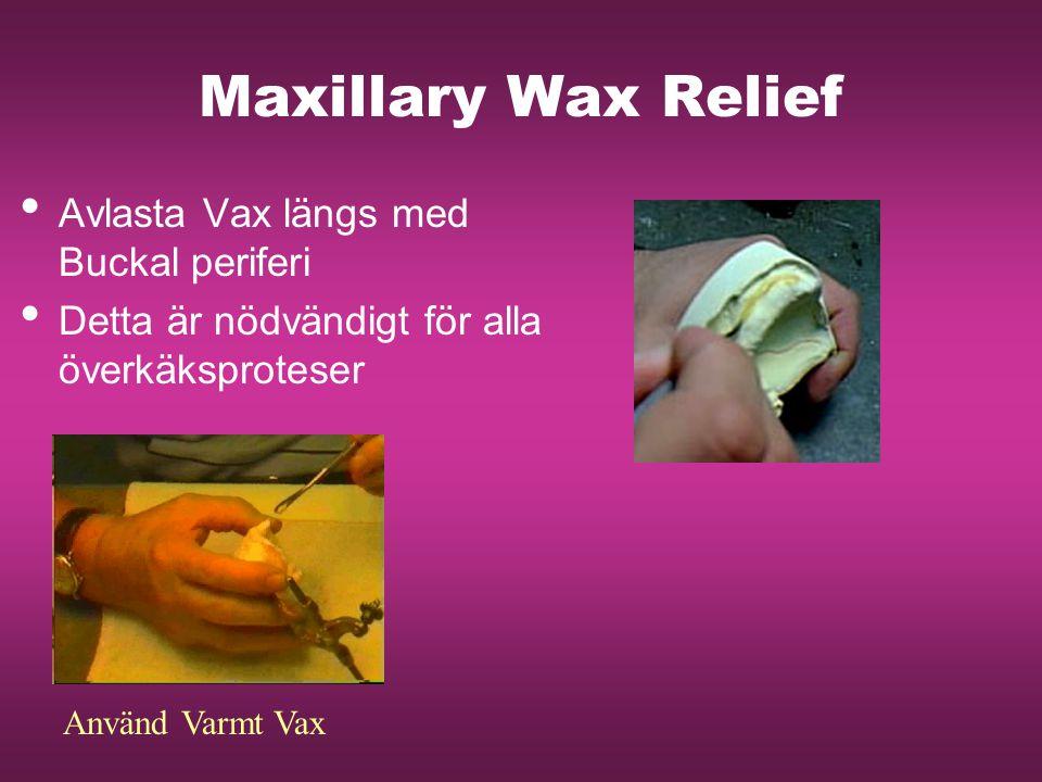 Maxillary Wax Relief Avlasta Vax längs med Buckal periferi