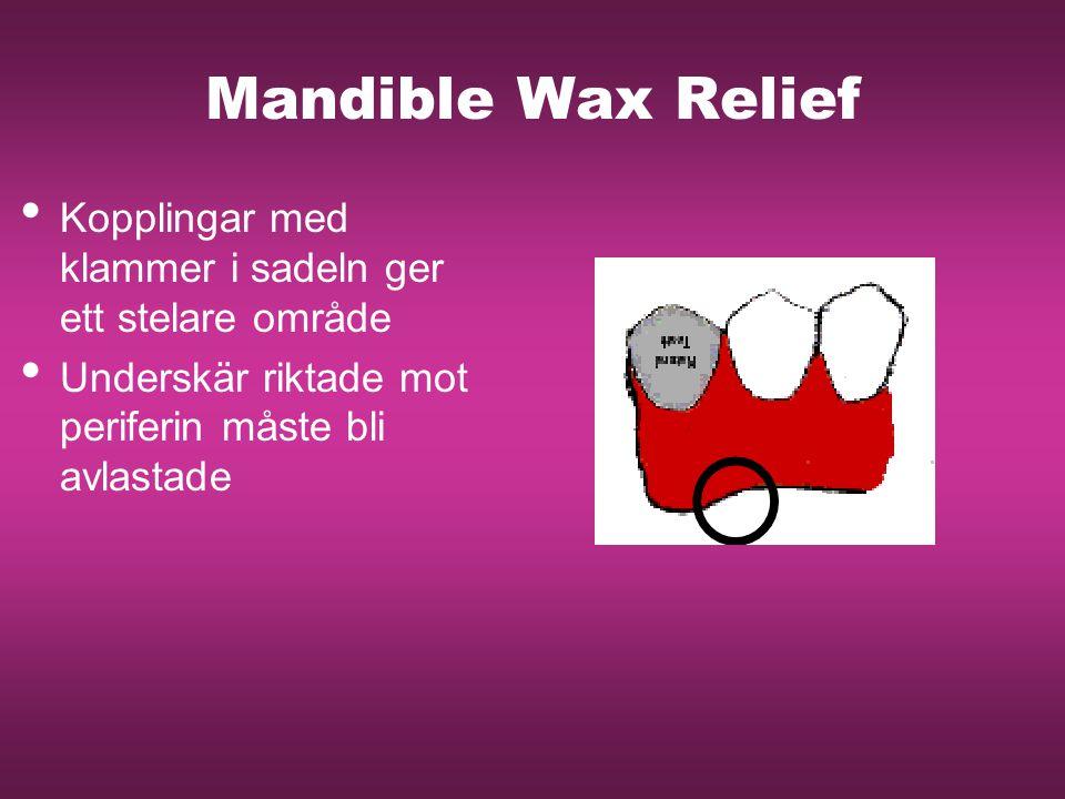 Mandible Wax Relief Kopplingar med klammer i sadeln ger ett stelare område. Underskär riktade mot periferin måste bli avlastade.