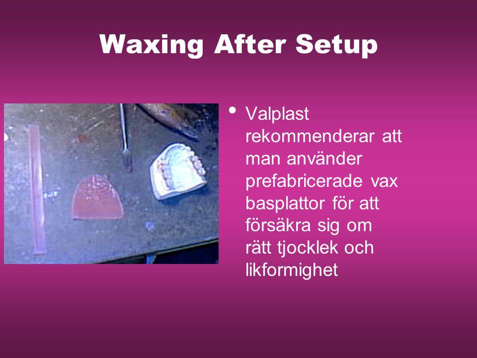 Waxing After Setup Valplast rekommenderar att man använder prefabricerade vax basplattor för att försäkra sig om rätt tjocklek och likformighet.