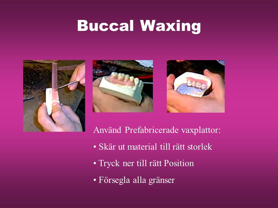 Buccal Waxing Använd Prefabricerade vaxplattor: