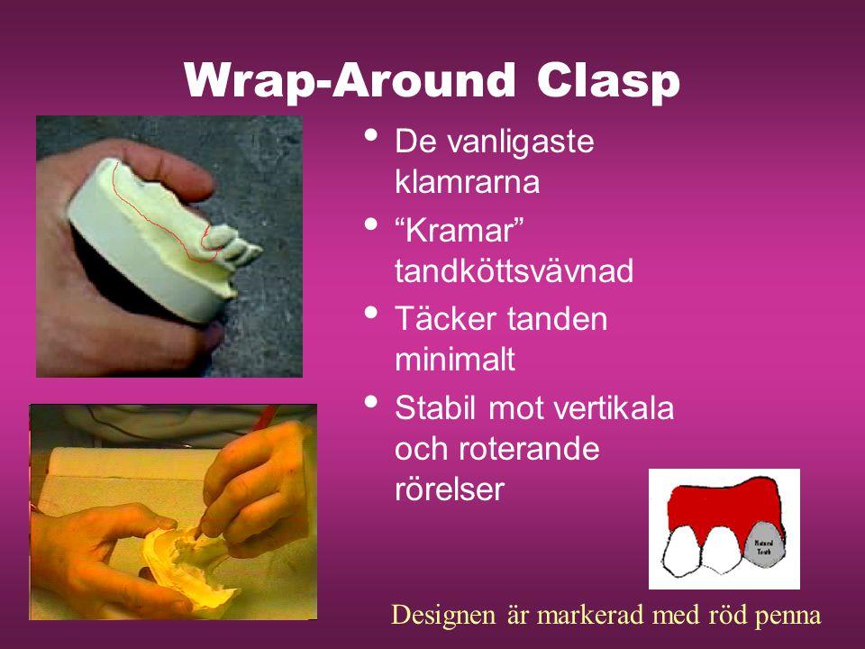 Wrap-Around Clasp De vanligaste klamrarna Kramar tandköttsvävnad