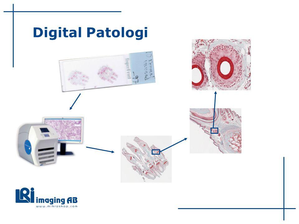 Digital Patologi