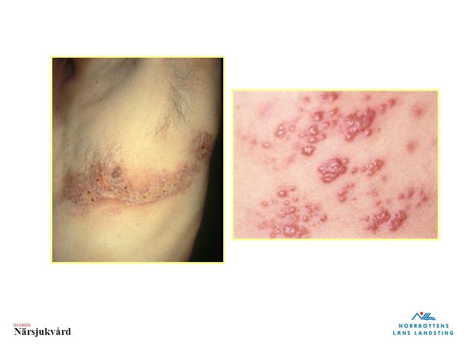 Zoster: Dermatomal Distribution