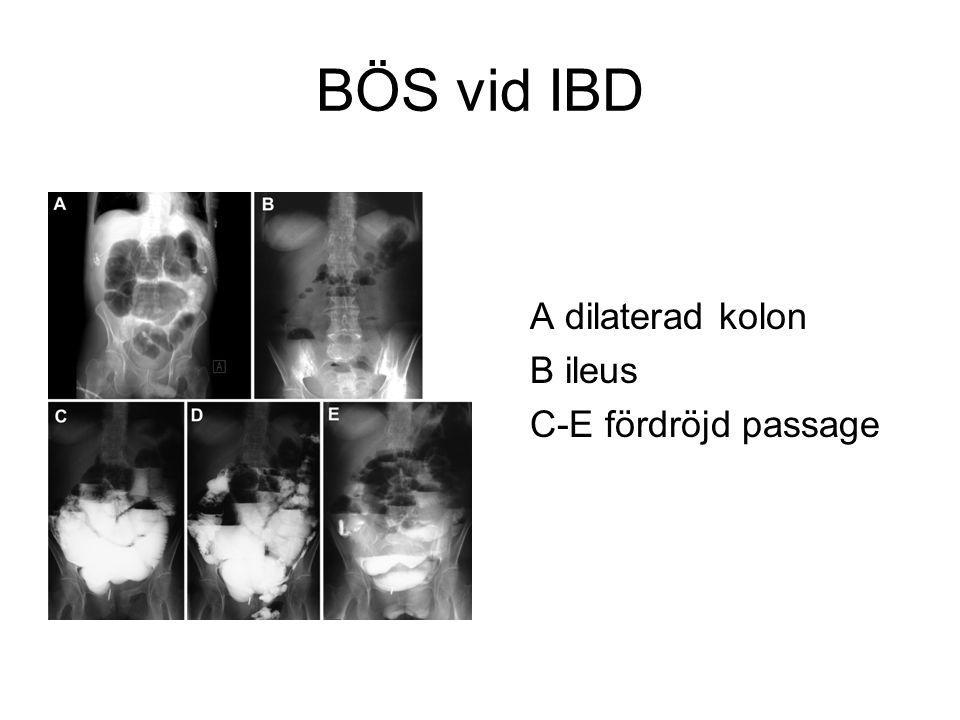 BÖS vid IBD A dilaterad kolon B ileus C-E fördröjd passage