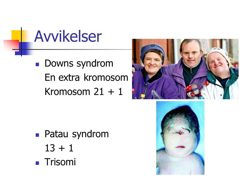 Avvikelser Downs syndrom En extra kromosom Kromosom 21 + 1