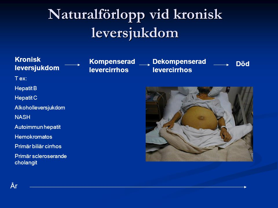 Naturalförlopp vid kronisk leversjukdom