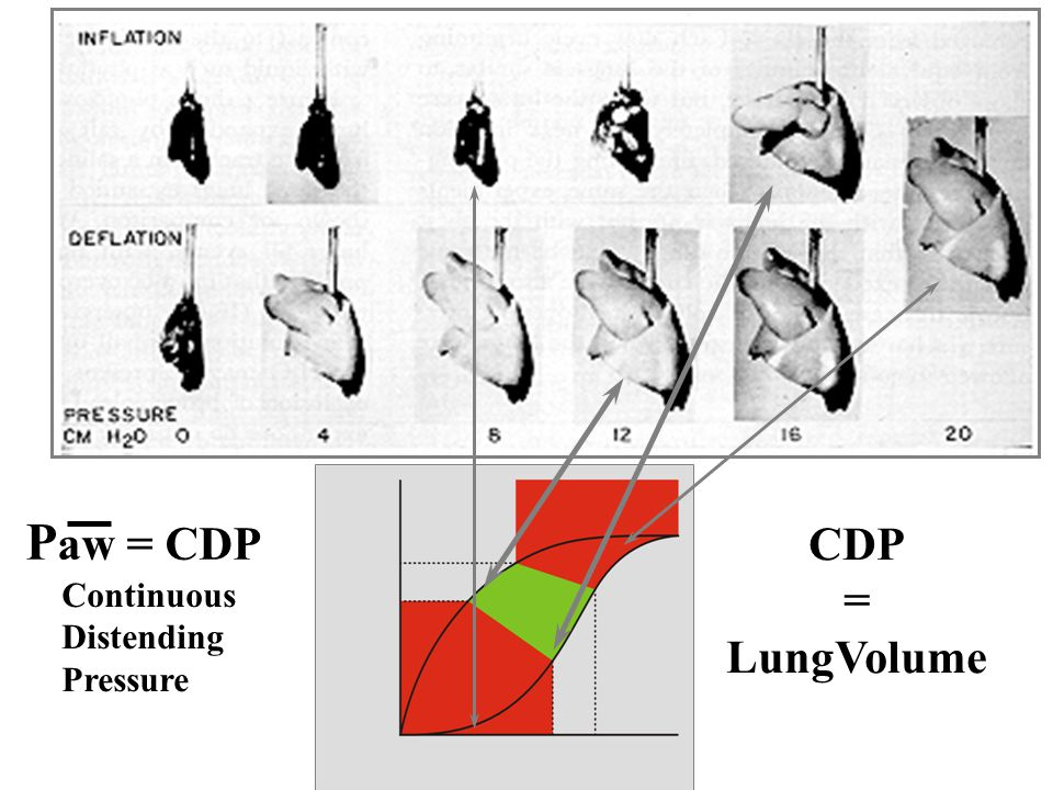 Paw = CDP CDP = LungVolume Continuous Distending Pressure