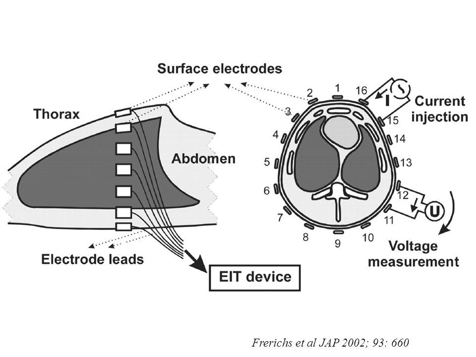 Frerichs et al JAP 2002; 93: 660