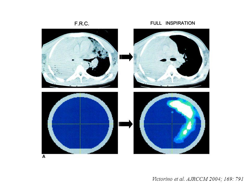 Victorino et al. AJRCCM 2004; 169: 791