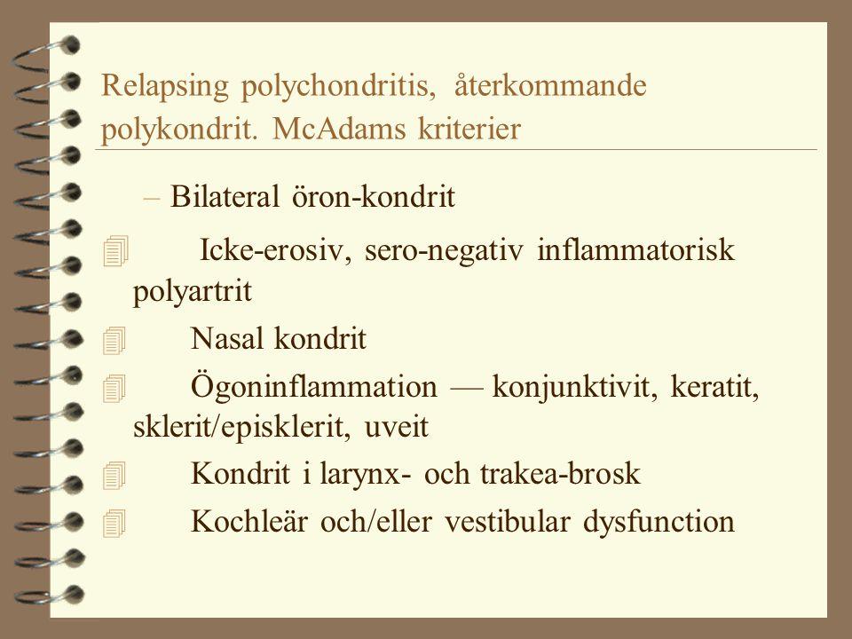 Relapsing polychondritis, återkommande polykondrit. McAdams kriterier