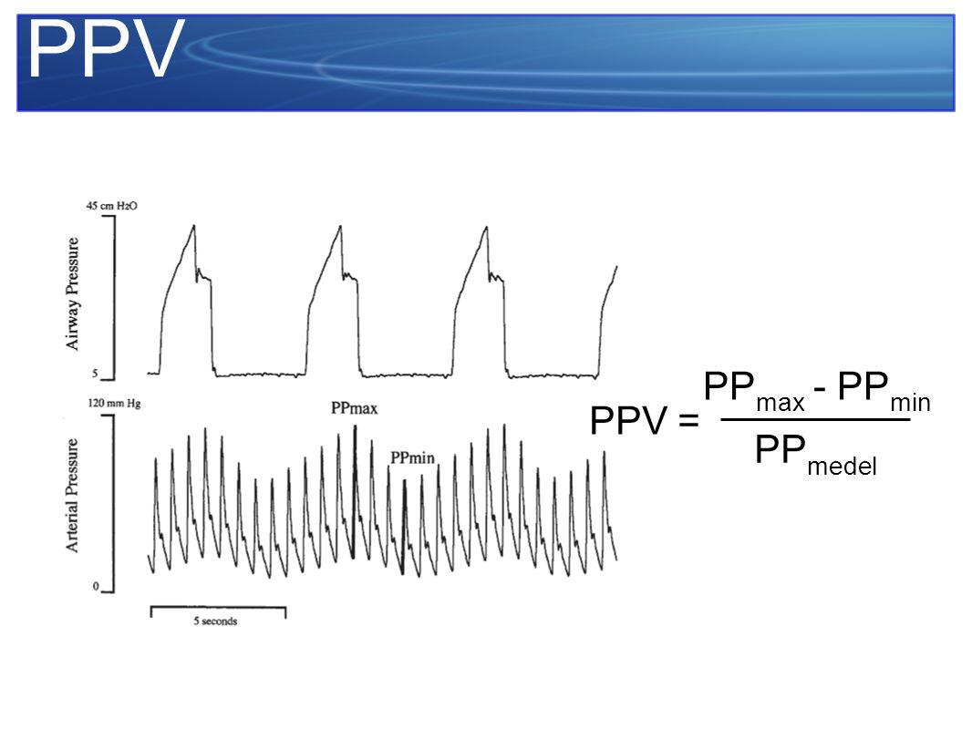 PPV PPmax - PPmin PPmedel PPV =