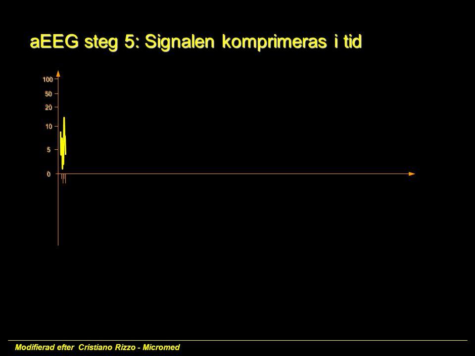 aEEG steg 5: Signalen komprimeras i tid
