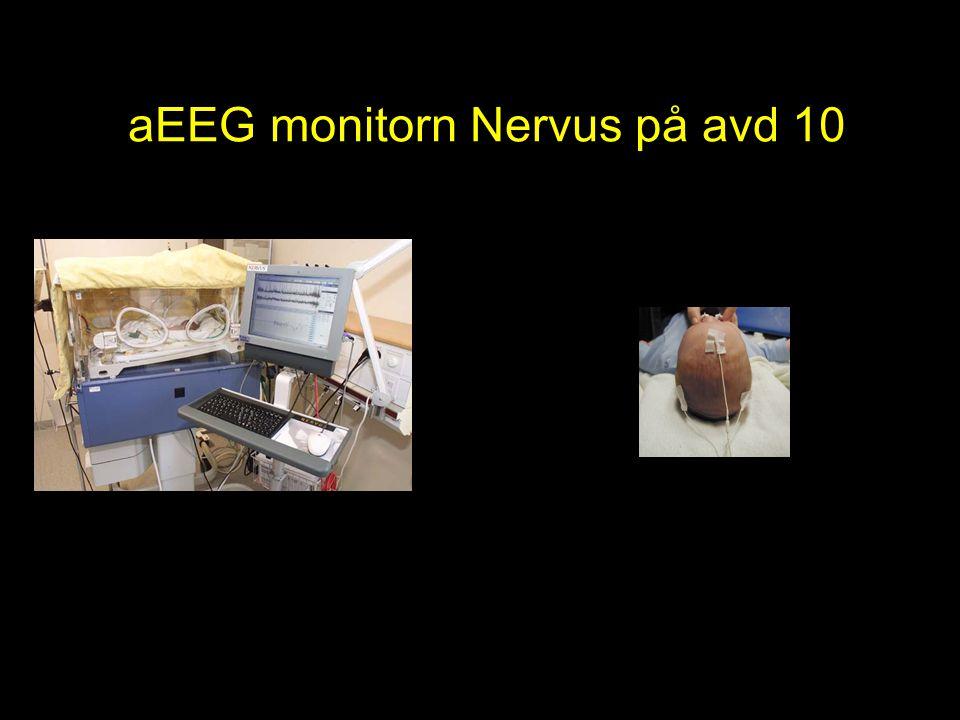 aEEG monitorn Nervus på avd 10