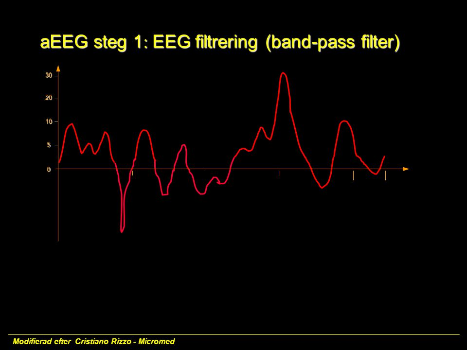 aEEG steg 1: EEG filtrering (band-pass filter)
