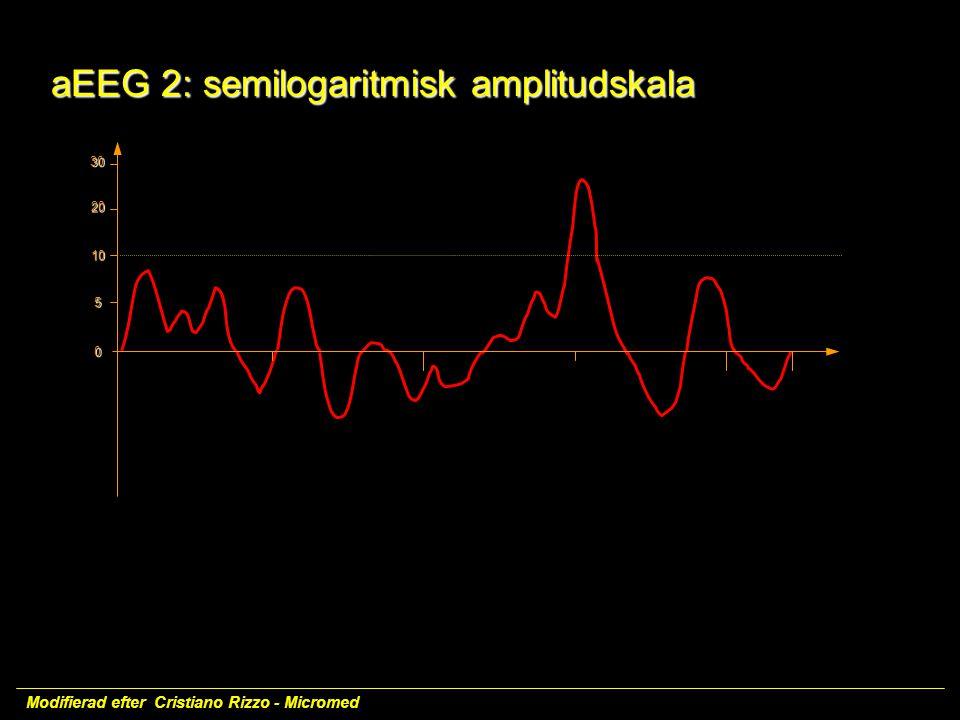 aEEG 2: semilogaritmisk amplitudskala
