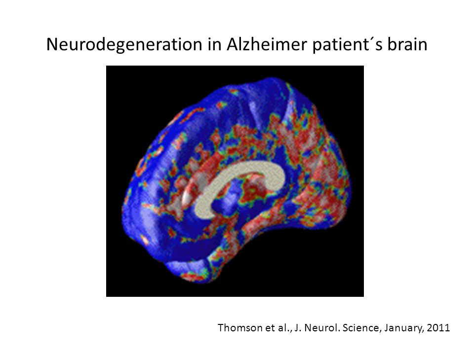 Neurodegeneration in Alzheimer patient´s brain