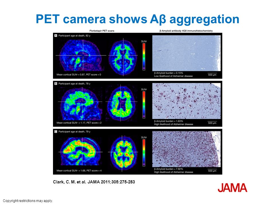 PET camera shows Aβ aggregation