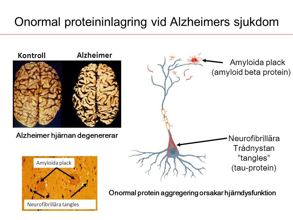 Onormal proteininlagring vid Alzheimers sjukdom