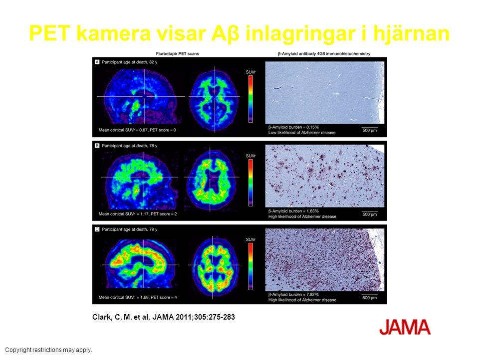 PET kamera visar Aβ inlagringar i hjärnan