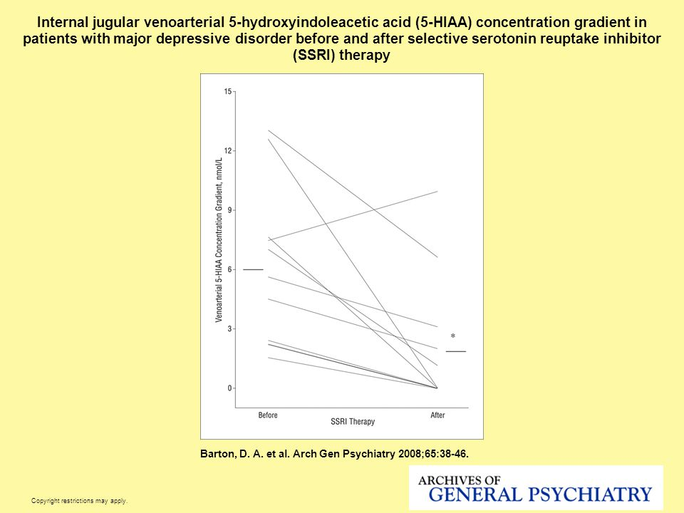 Internal jugular venoarterial 5-hydroxyindoleacetic acid (5-HIAA) concentration gradient in patients with major depressive disorder before and after selective serotonin reuptake inhibitor (SSRI) therapy