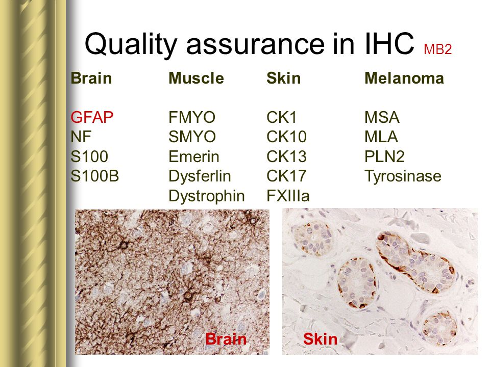 Quality assurance in IHC MB2