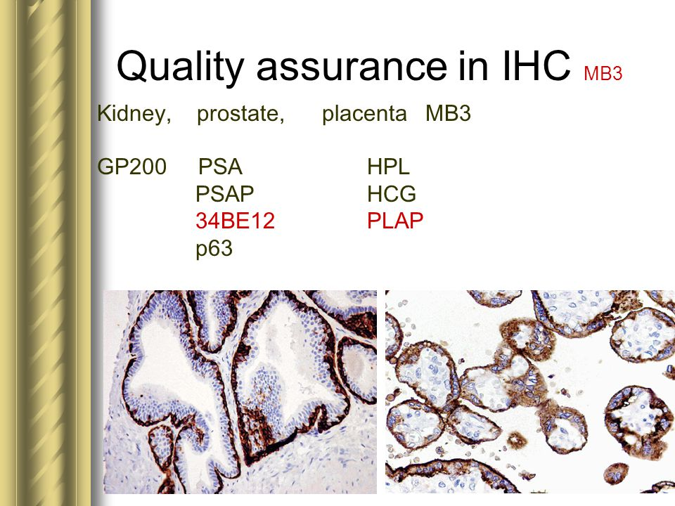 Quality assurance in IHC MB3