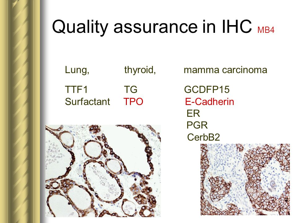 Quality assurance in IHC MB4