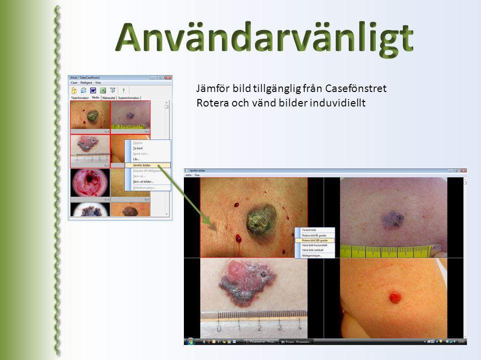 Användarvänligt Jämför bild tillgänglig från Casefönstret