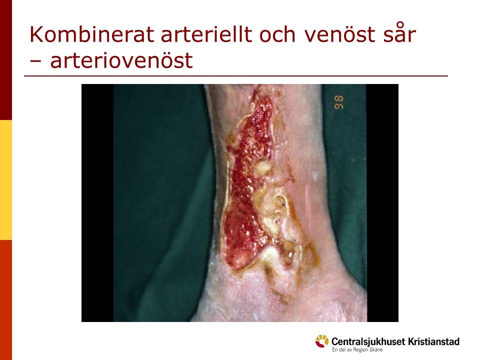 Kombinerat arteriellt och venöst sår – arteriovenöst