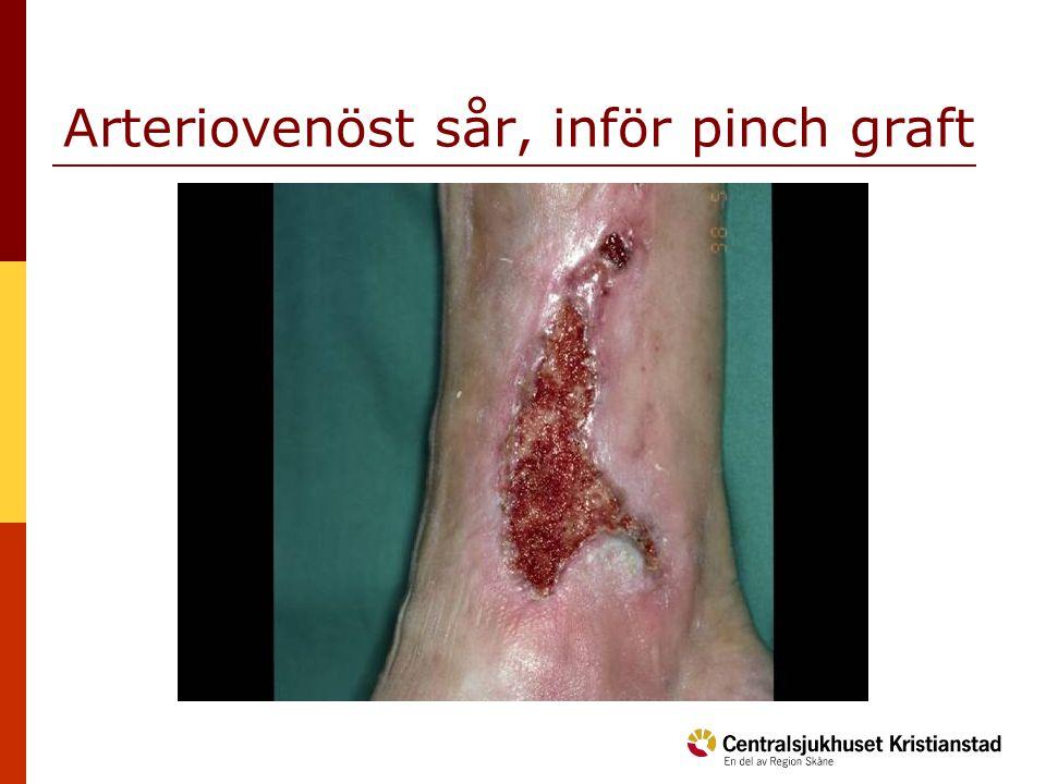 Arteriovenöst sår, inför pinch graft
