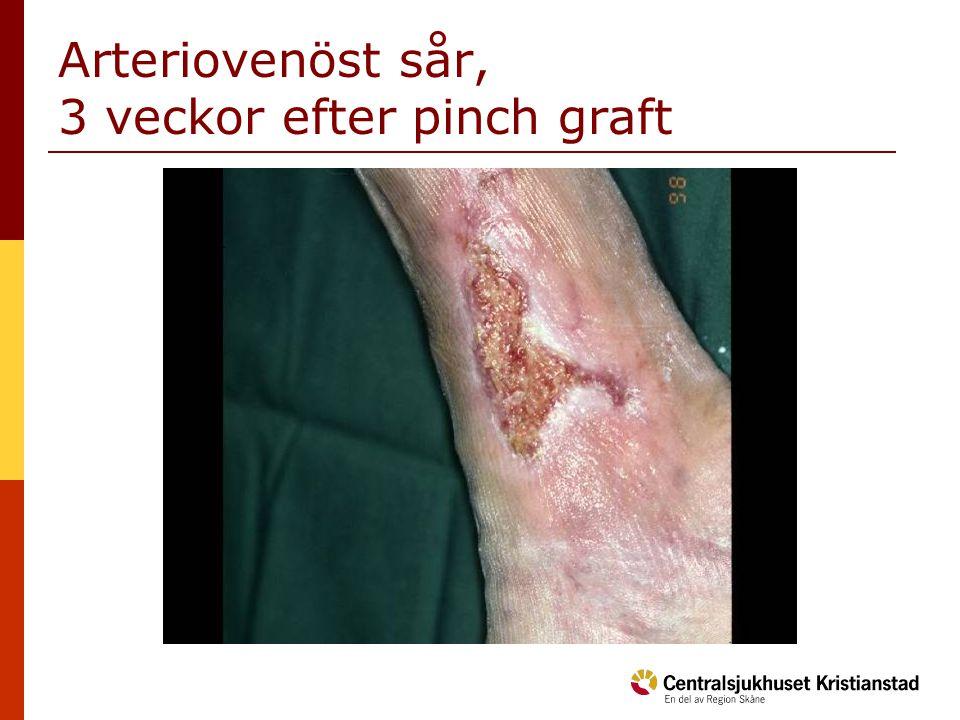 Arteriovenöst sår, 3 veckor efter pinch graft