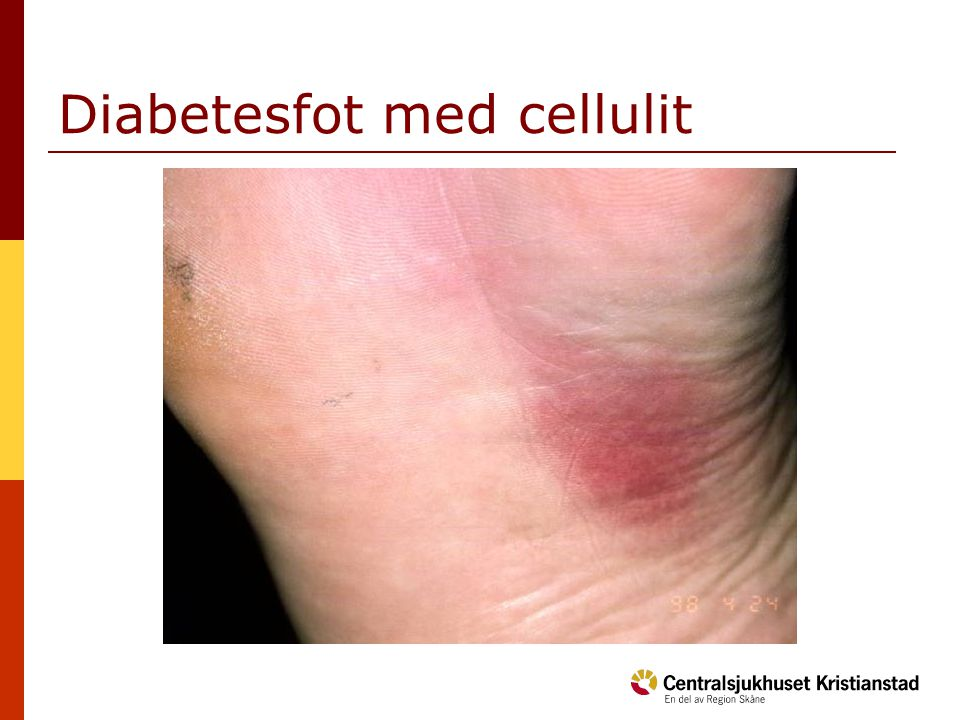 Diabetesfot med cellulit