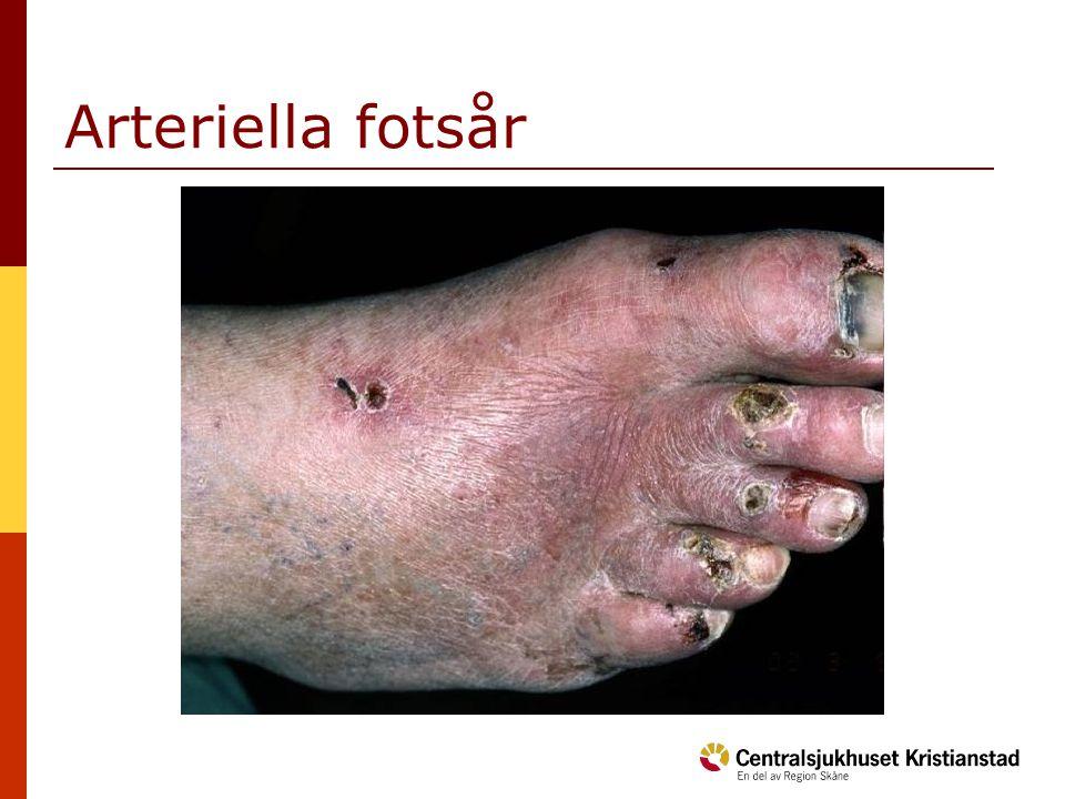Arteriella fotsår