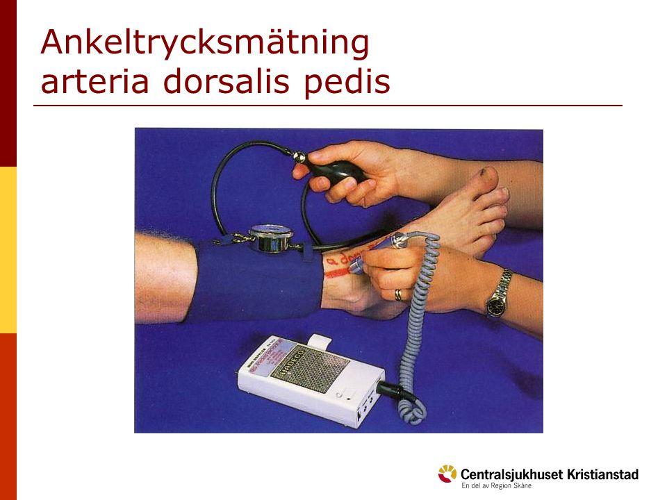 Ankeltrycksmätning arteria dorsalis pedis