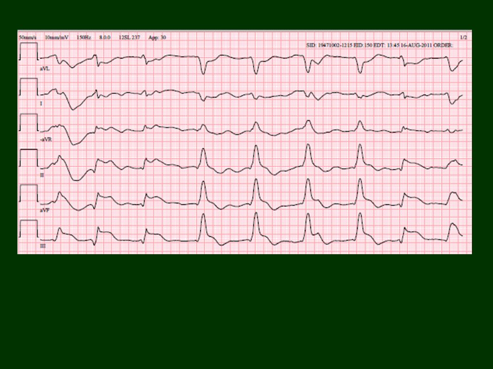 EKG 13