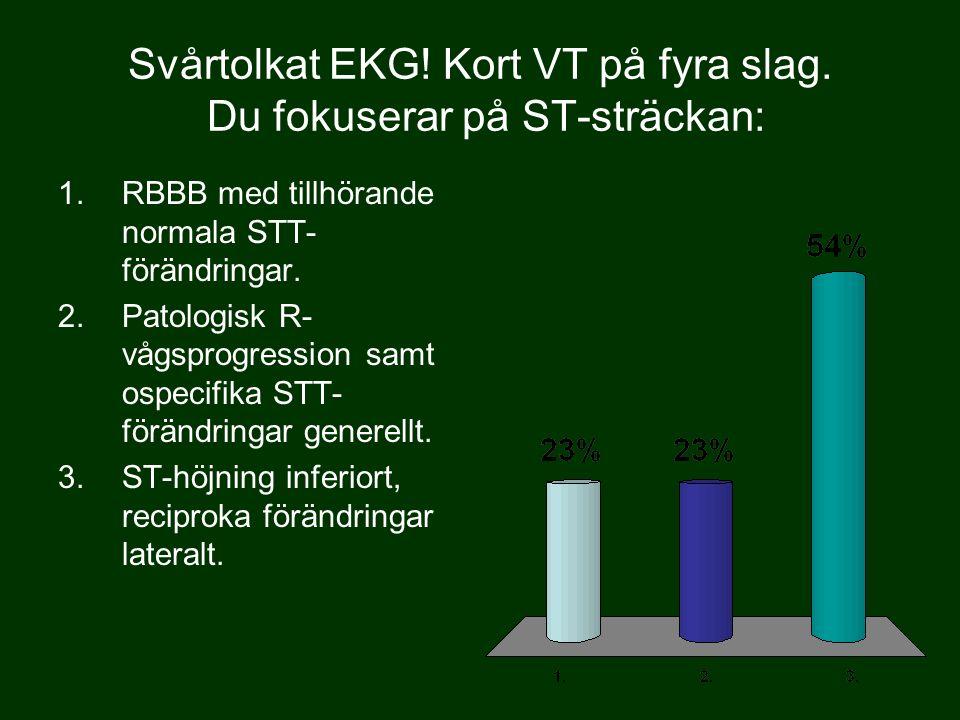 Svårtolkat EKG! Kort VT på fyra slag. Du fokuserar på ST-sträckan: