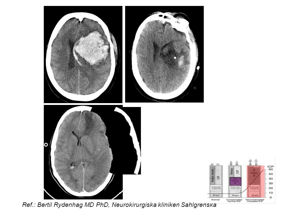 Ref.: Bertil Rydenhag MD PhD, Neurokirurgiska kliniken Sahlgrenska
