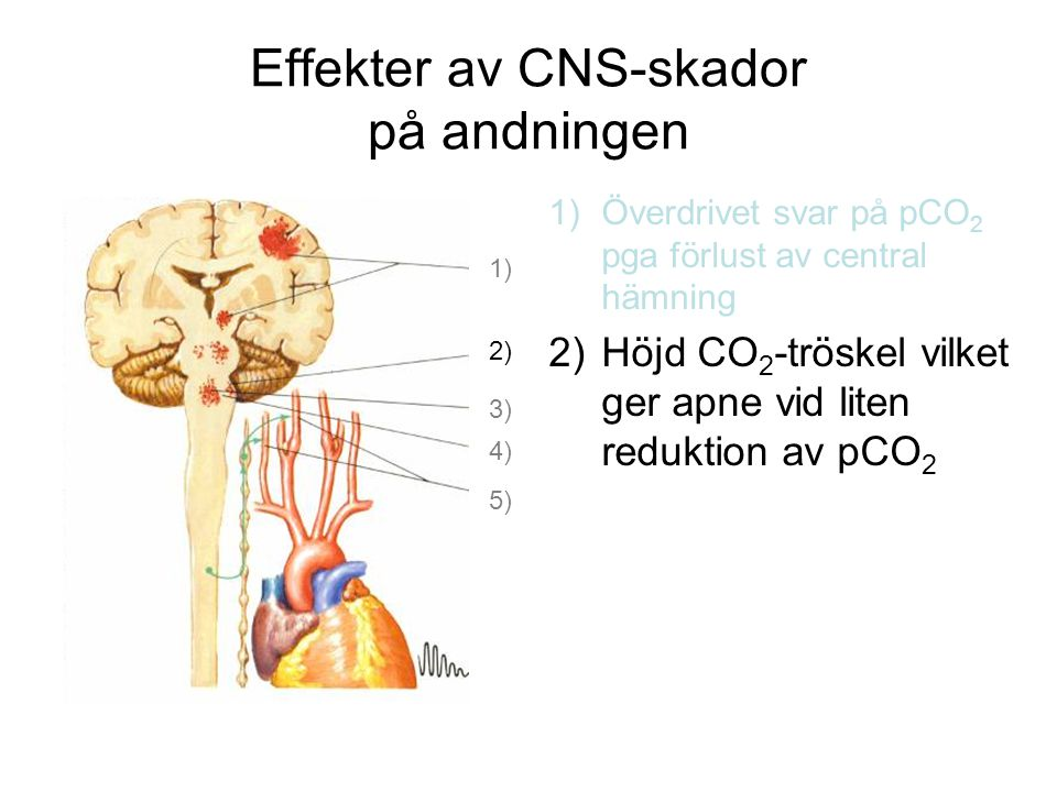 Effekter av CNS-skador på andningen