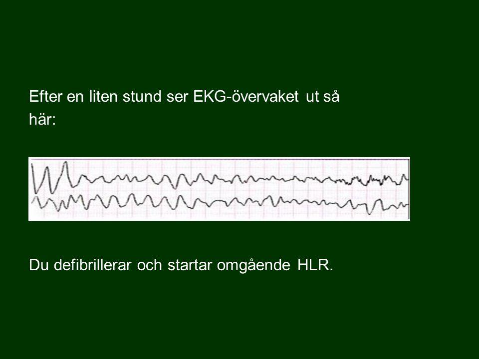 Efter en liten stund ser EKG-övervaket ut så här: