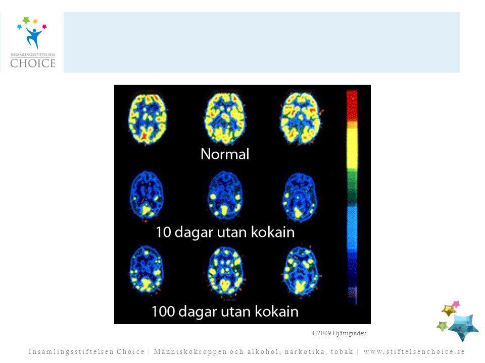 Man har studerat effekten av ett långvarigt kokainmissbruk (Volkow et al. 1993) med hjälp av hjärnavbildningsteknik. Kokainmissbrukarnas hjärnor undersöktes 10 dagar efter sista dos (man vill inte studera de första dagarna då abstinensen kan påverka resultatet) och efter 100 dagars drogfrihet.