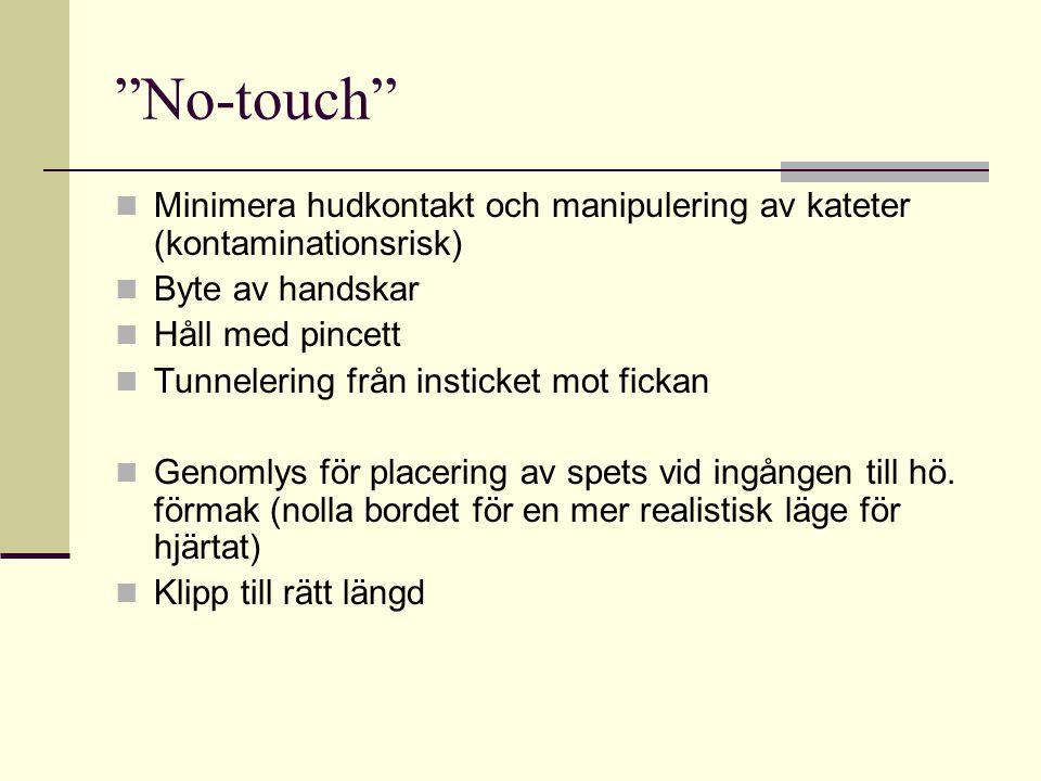 No-touch Minimera hudkontakt och manipulering av kateter (kontaminationsrisk) Byte av handskar. Håll med pincett.