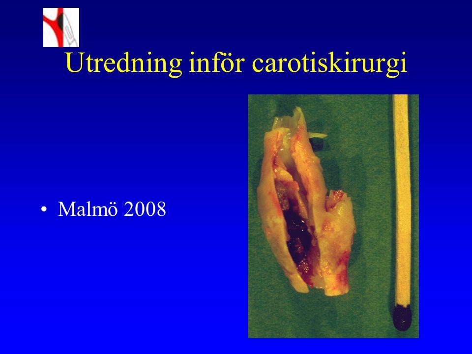 Utredning inför carotiskirurgi