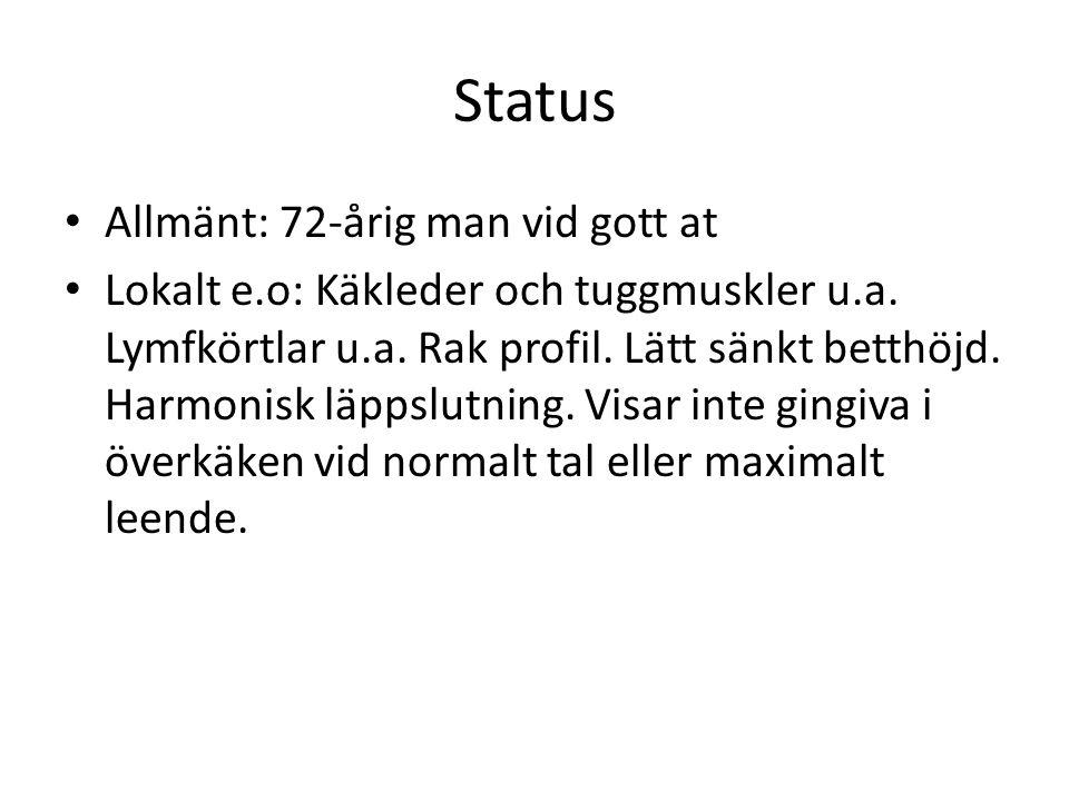 Status Allmänt: 72-årig man vid gott at