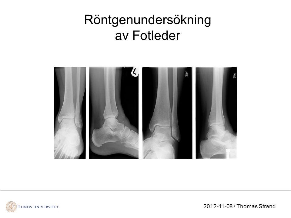 Röntgenundersökning av Fotleder