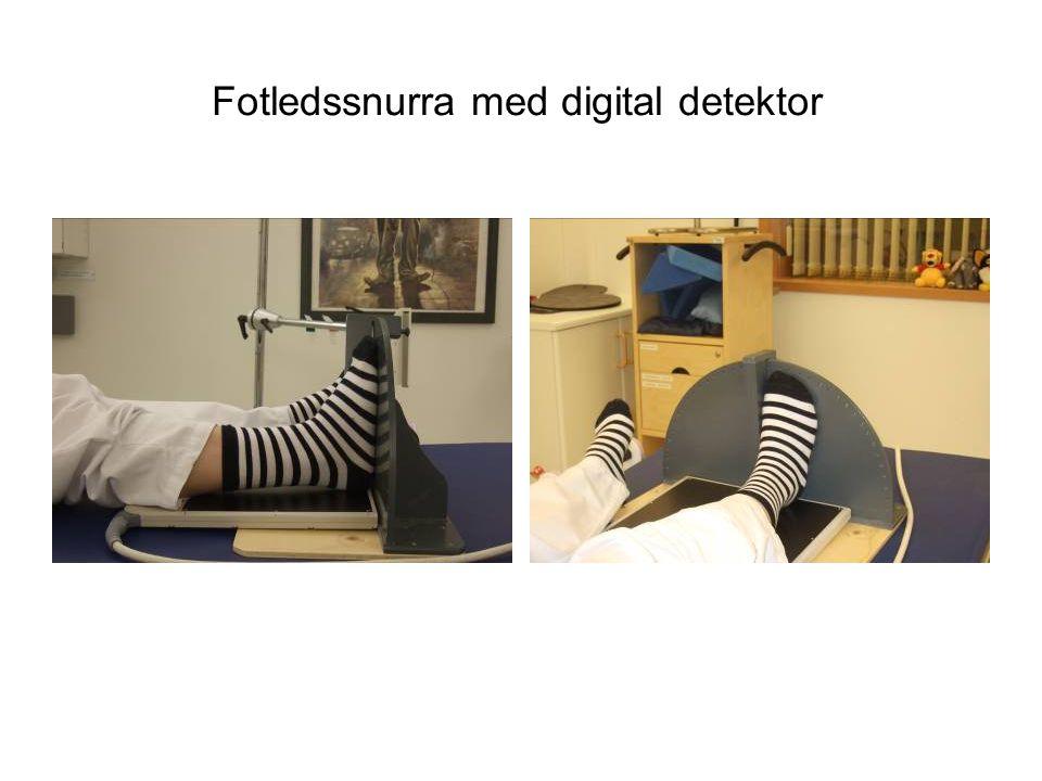 Fotledssnurra med digital detektor